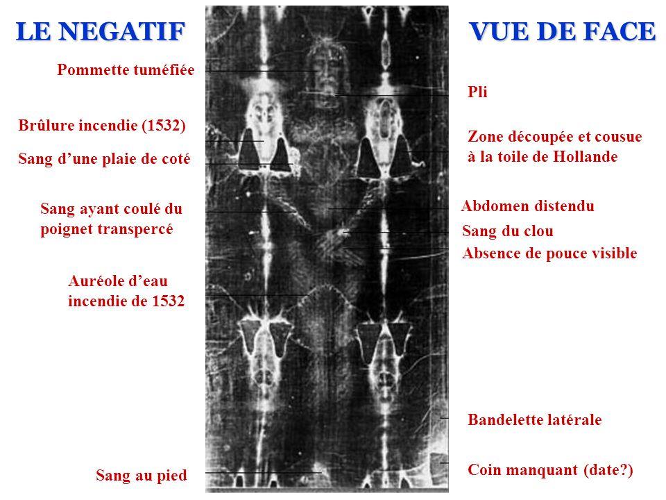 LE NEGATIF VUE DE FACE Pommette tuméfiée Pli Brûlure incendie (1532)