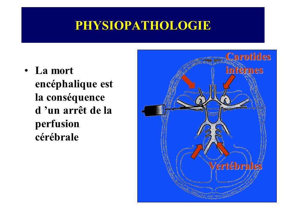 PHYSIOPATHOLOGIE Carotidesinternes