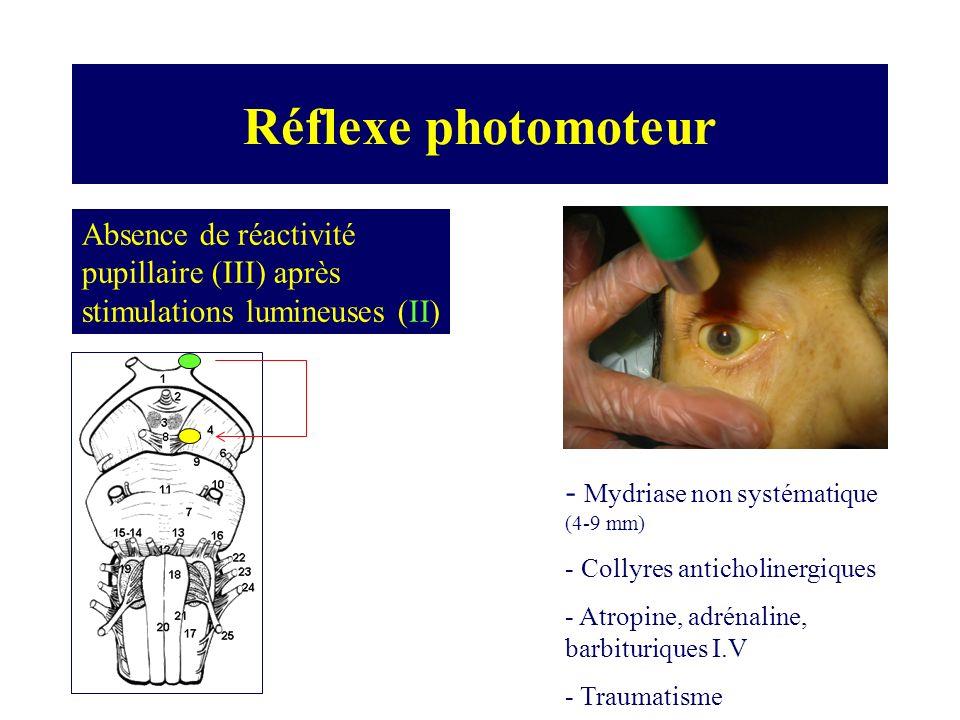 Réflexe photomoteur Absence de réactivité pupillaire (III) après stimulations lumineuses (II) - Mydriase non systématique (4-9 mm)
