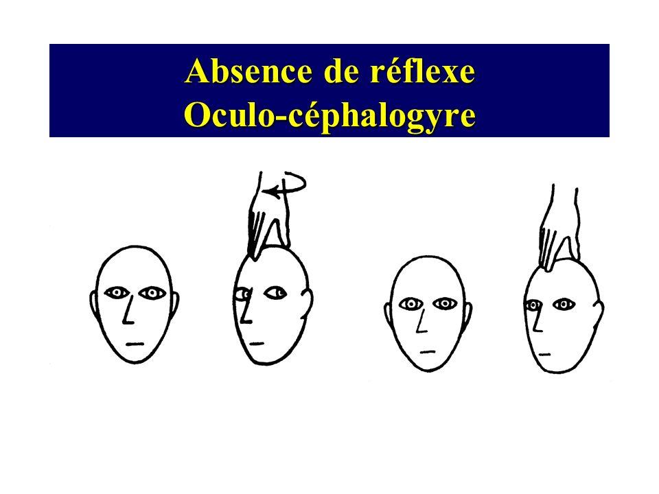 Absence de réflexe Oculo-céphalogyre