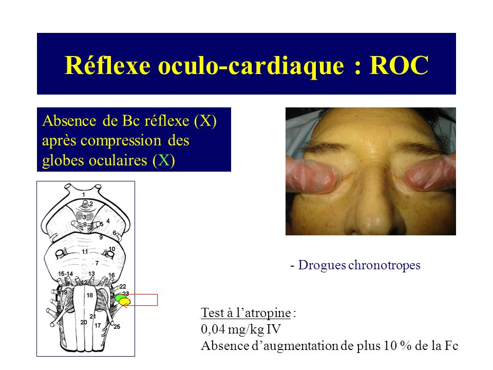 Réflexe oculo-cardiaque : ROC