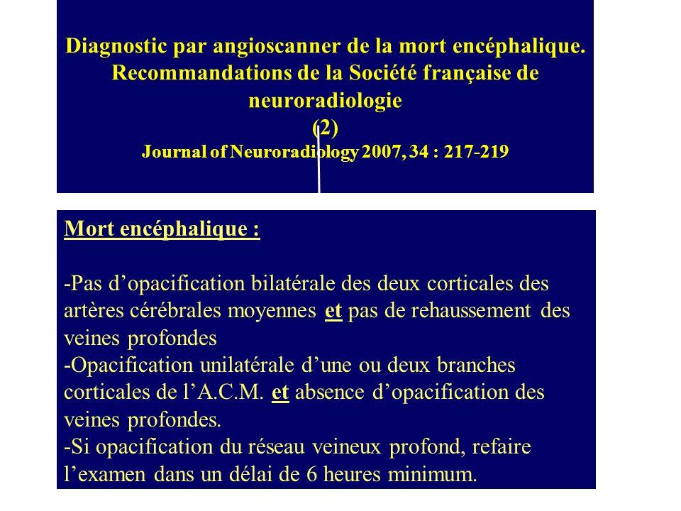 Diagnostic par angioscanner de la mort encéphalique