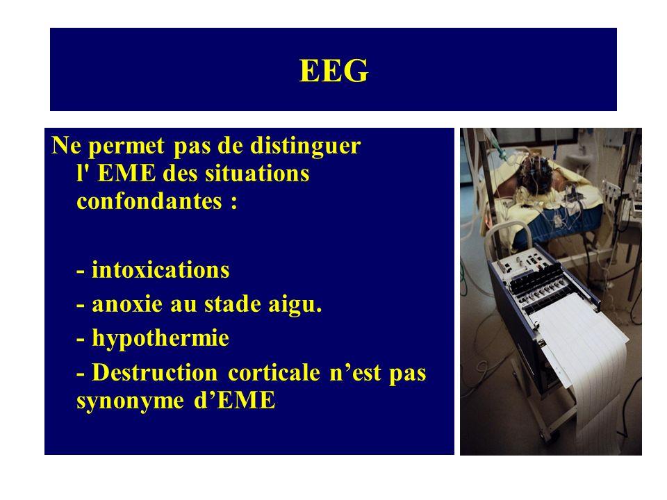 EEG Ne permet pas de distinguer l EME des situations confondantes :