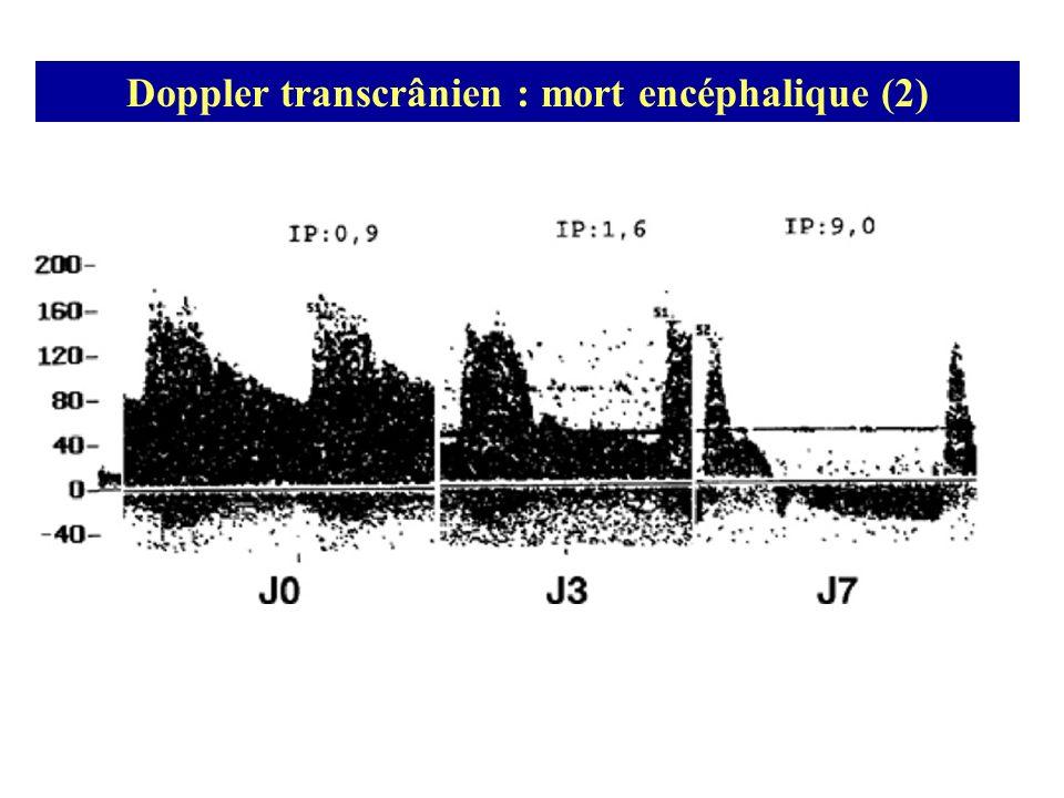 Doppler transcrânien : mort encéphalique (2)