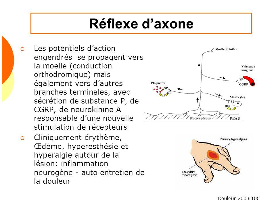 Réflexe d'axone