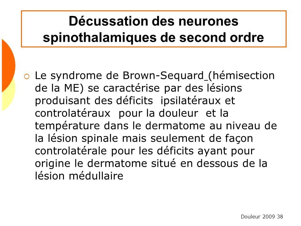Décussation des neurones spinothalamiques de second ordre