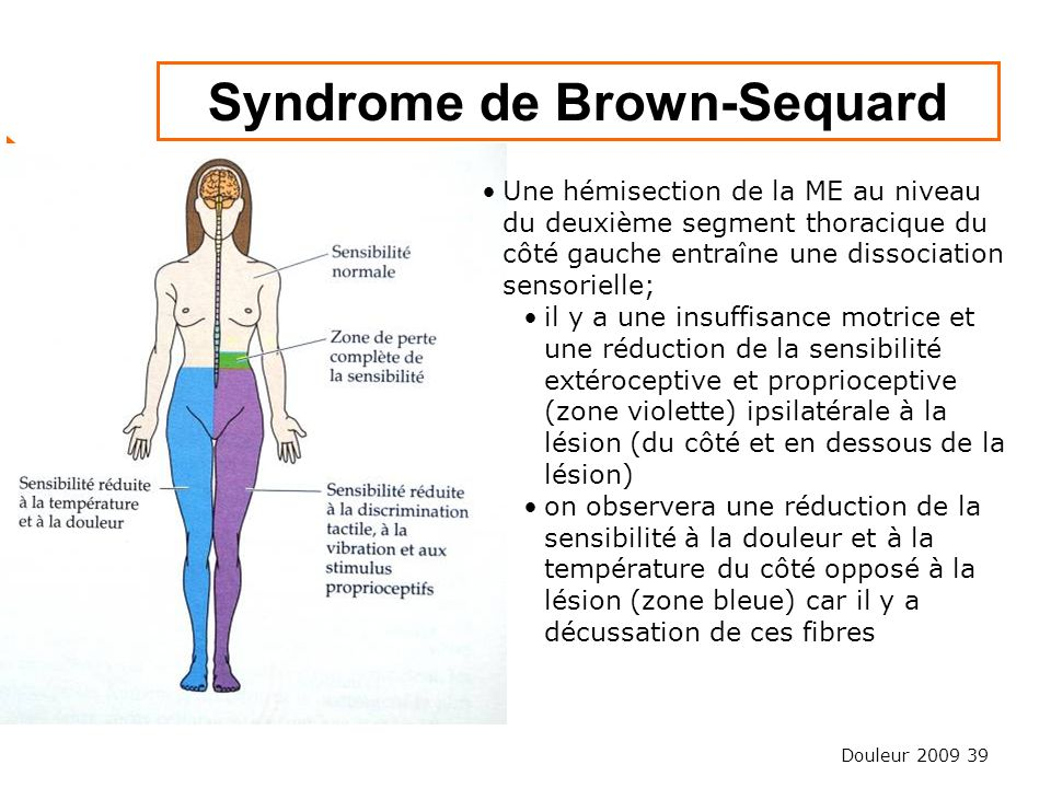 Syndrome de Brown-Sequard