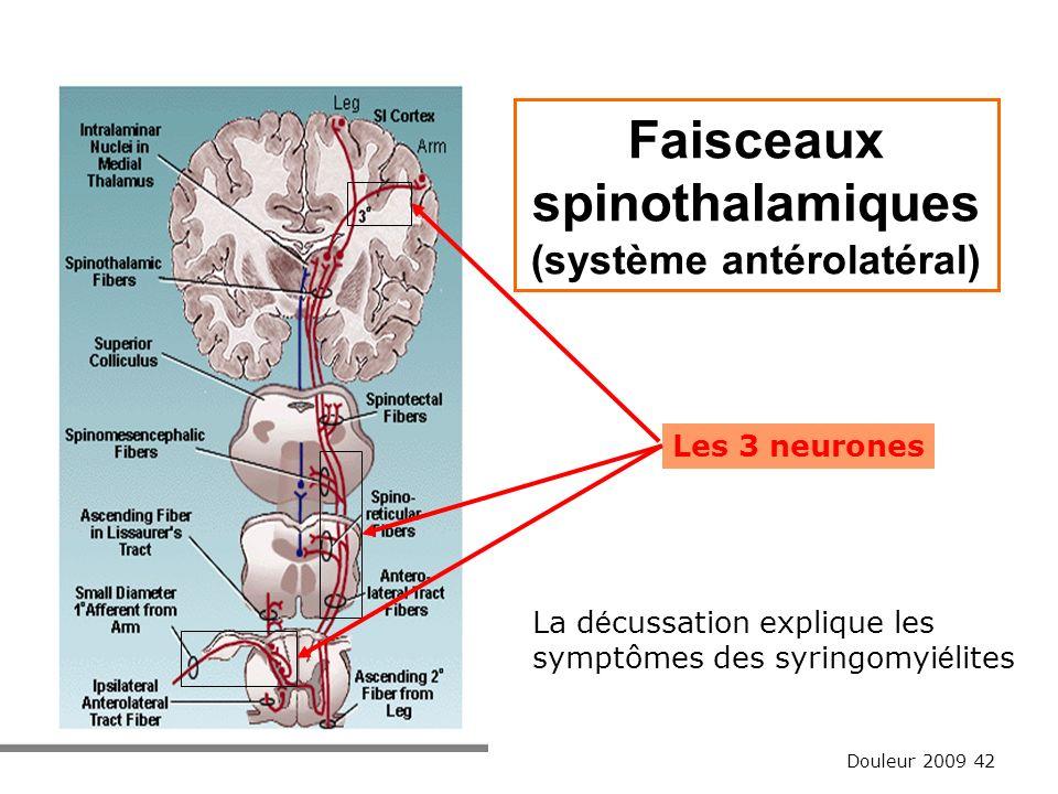 Faisceaux spinothalamiques (système antérolatéral)