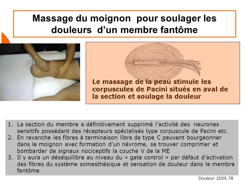 Massage du moignon pour soulager les douleurs d'un membre fantôme