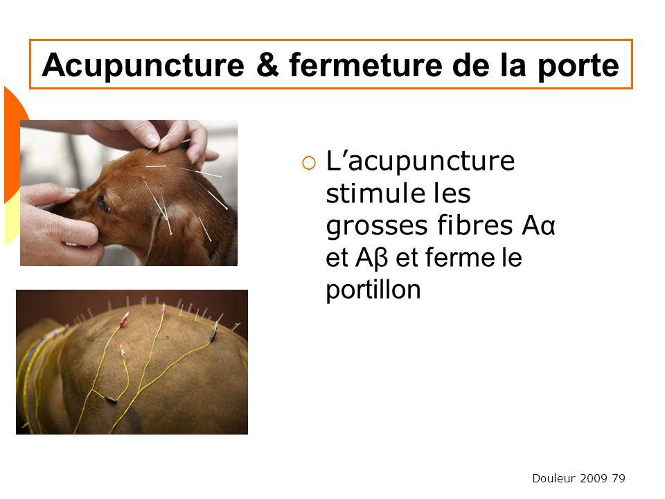 Acupuncture & fermeture de la porte