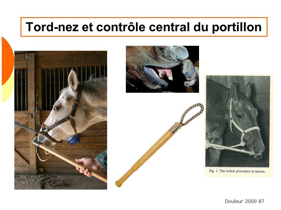 Tord-nez et contrôle central du portillon