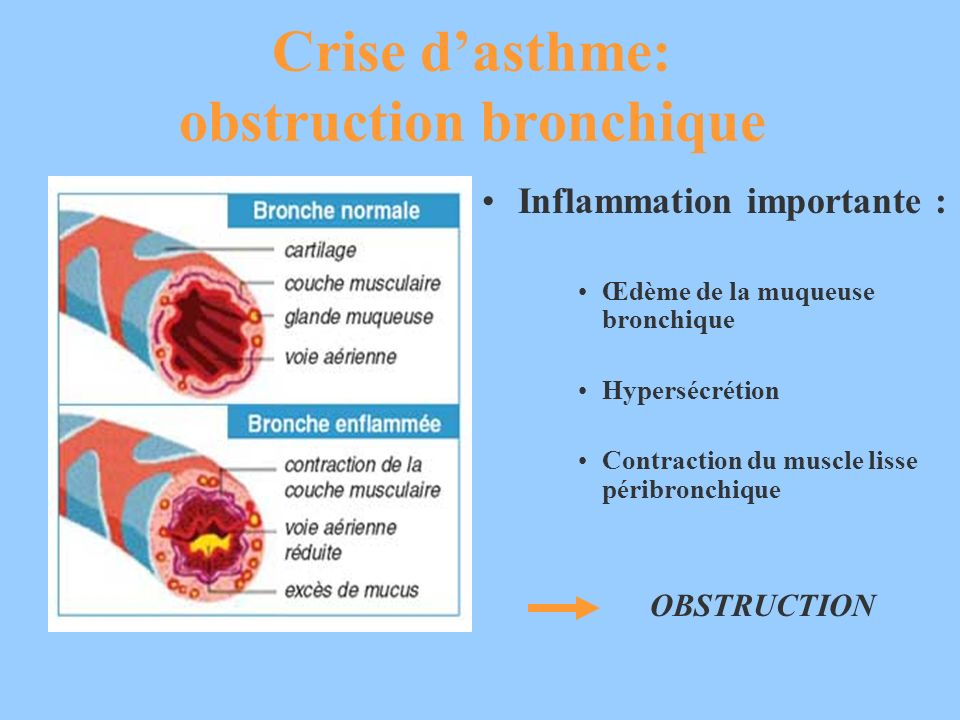 Crise d'asthme: obstruction bronchique