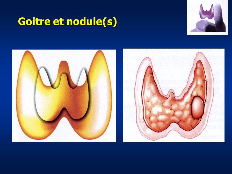 Goitre et nodule(s)