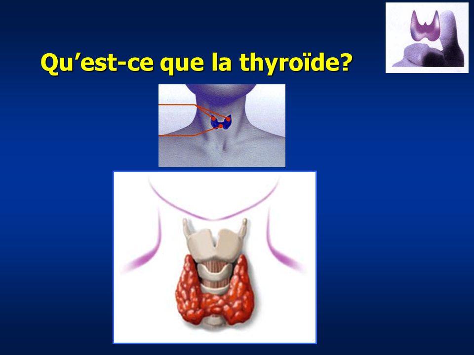 Qu'est-ce que la thyroïde