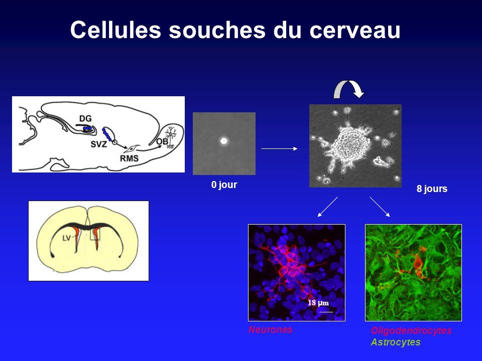 Cellules souches du cerveau