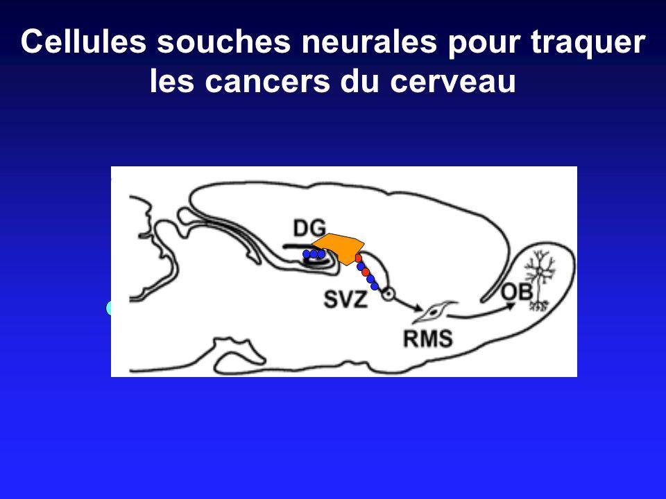 Cellules souches neurales pour traquer les cancers du cerveau