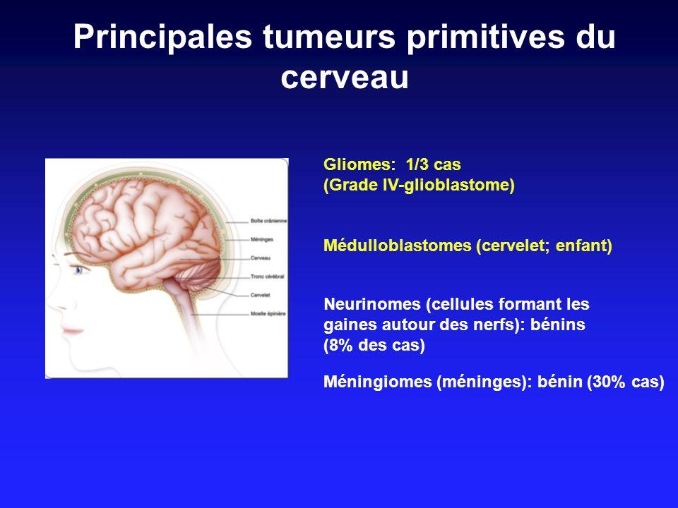 Principales tumeurs primitives du cerveau