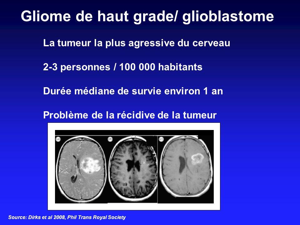 Gliome de haut grade/ glioblastome
