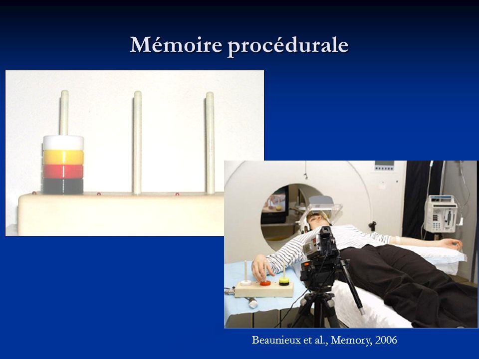 Mémoire procédurale Beaunieux et al., Memory, 2006
