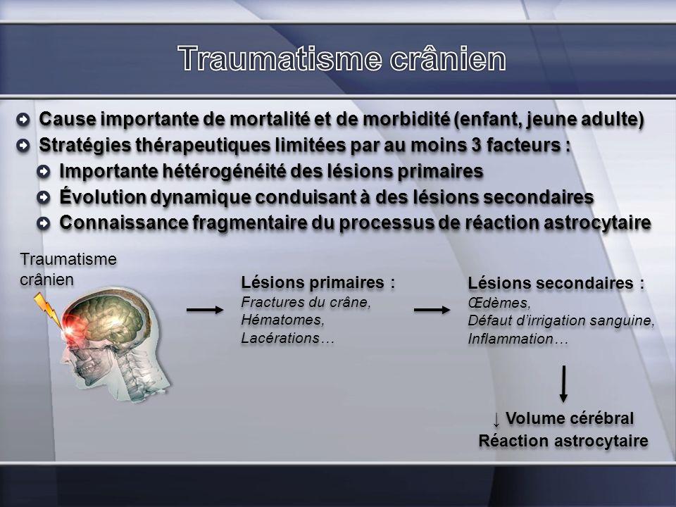 Réaction astrocytaire