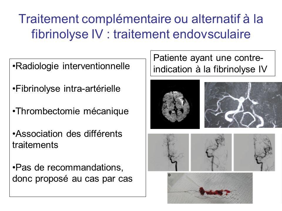 Traitement complémentaire ou alternatif à la fibrinolyse IV : traitement endovsculaire