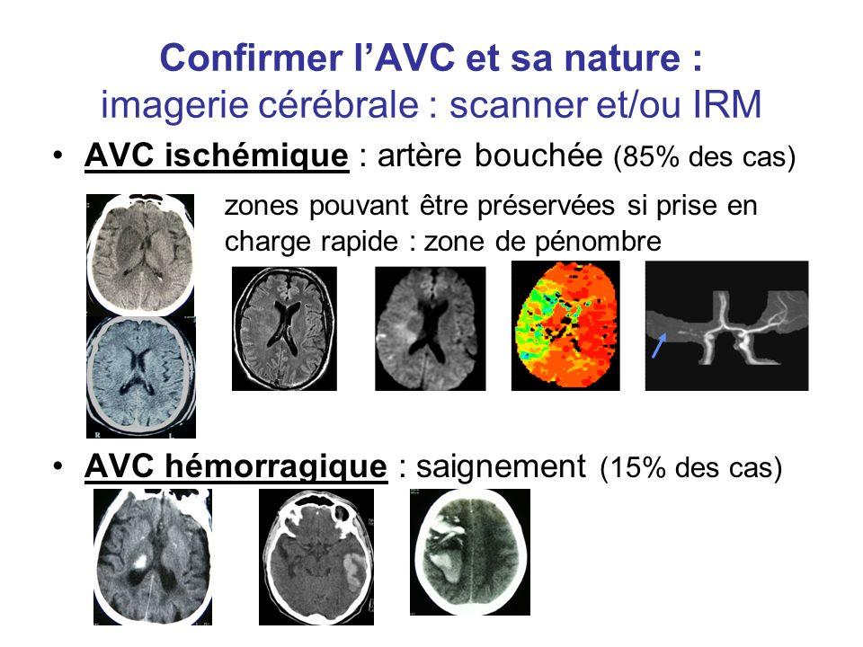 Confirmer l'AVC et sa nature : imagerie cérébrale : scanner et/ou IRM