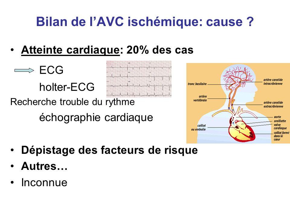 Bilan de l'AVC ischémique: cause