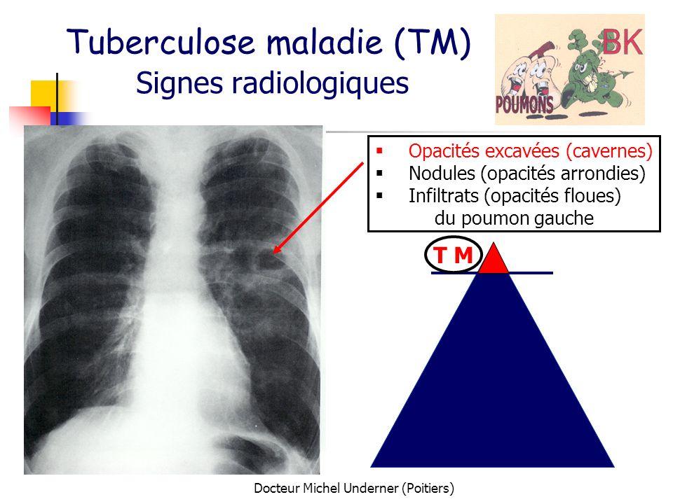 Tuberculose maladie (TM) Signes radiologiques