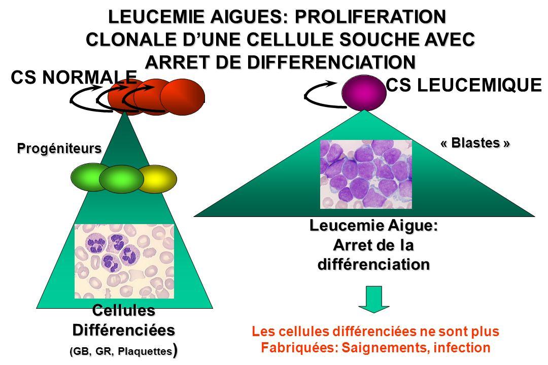 LEUCEMIE AIGUES: PROLIFERATION CLONALE D'UNE CELLULE SOUCHE AVEC ARRET DE DIFFERENCIATION