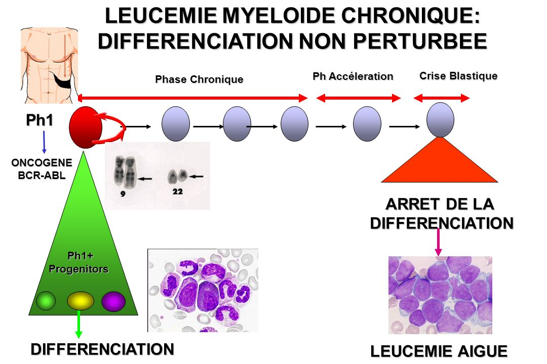 LEUCEMIE MYELOIDE CHRONIQUE: DIFFERENCIATION NON PERTURBEE