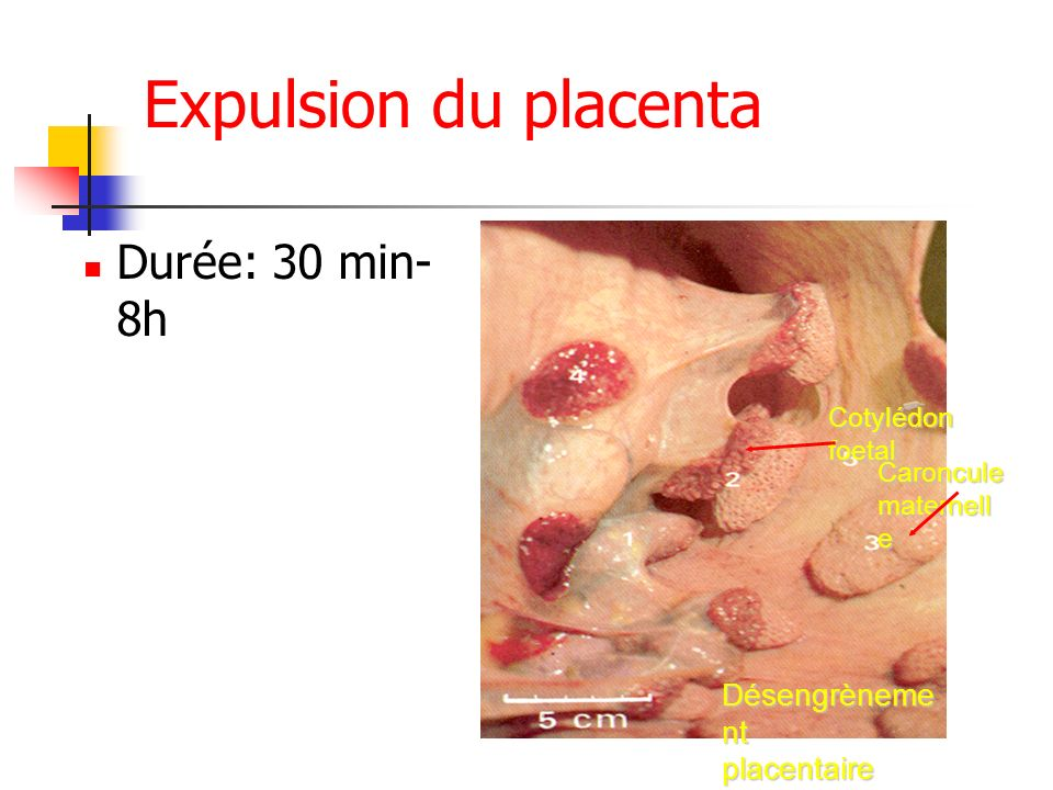 Expulsion du placenta Durée: 30 min-8h Désengrènement placentaire