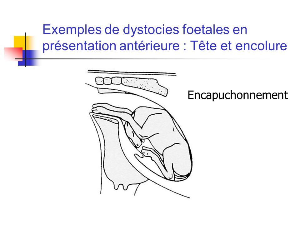 Exemples de dystocies foetales en présentation antérieure : Tête et encolure