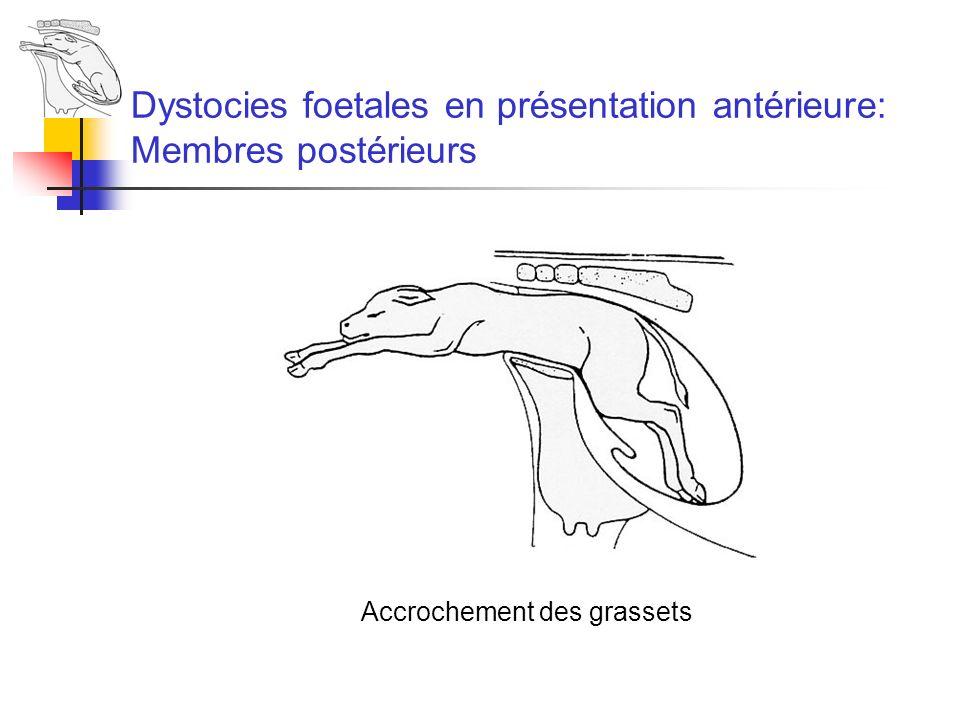 Dystocies foetales en présentation antérieure: Membres postérieurs