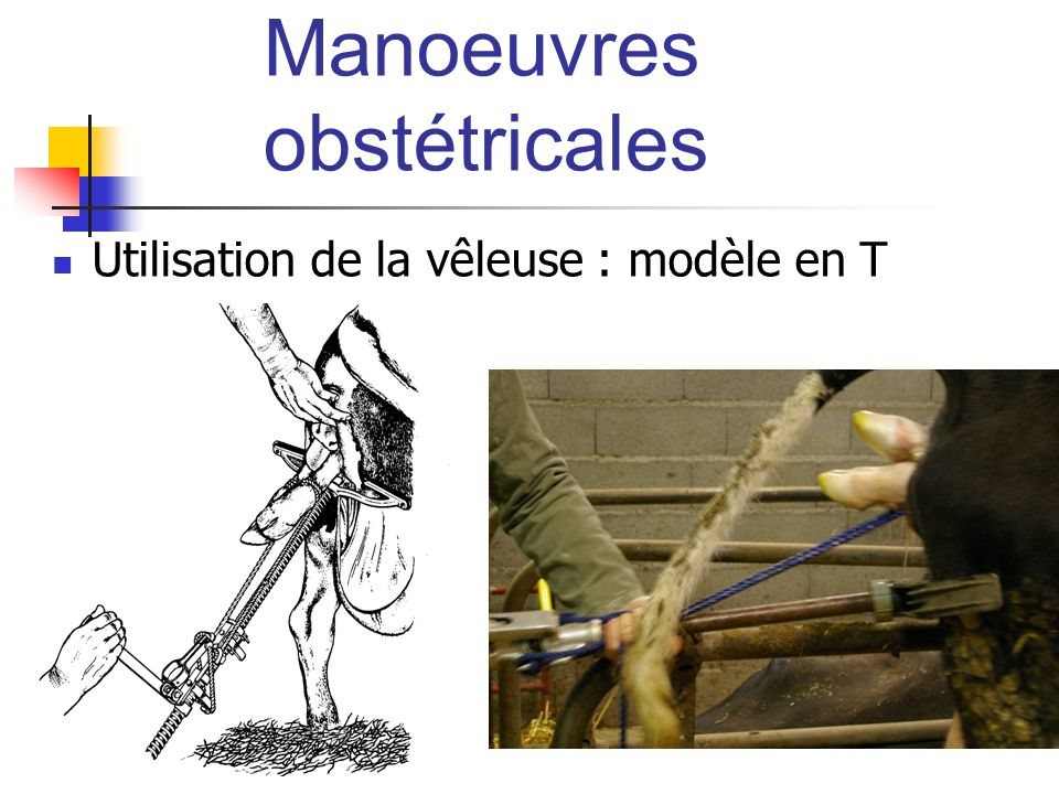 Manoeuvres obstétricales