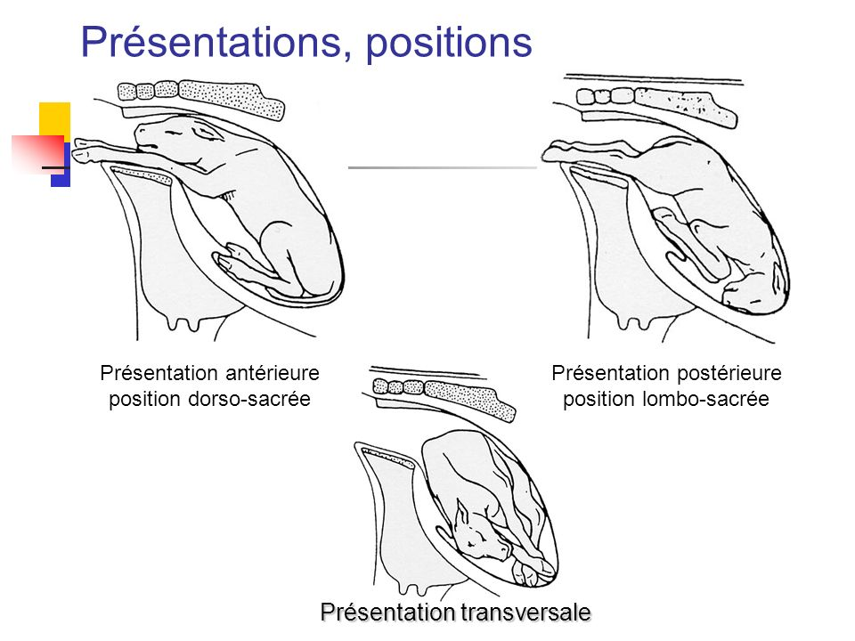 Présentations, positions