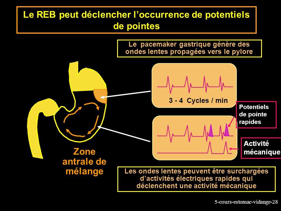 Le REB peut déclencher l'occurrence de potentiels de pointes
