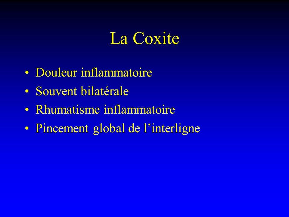La Coxite Douleur inflammatoire Souvent bilatérale