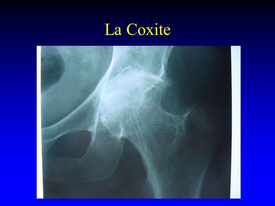 La Coxite