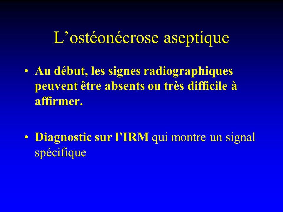 L'ostéonécrose aseptique