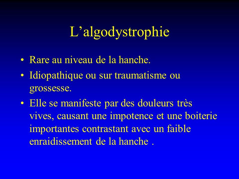 L'algodystrophie Rare au niveau de la hanche.
