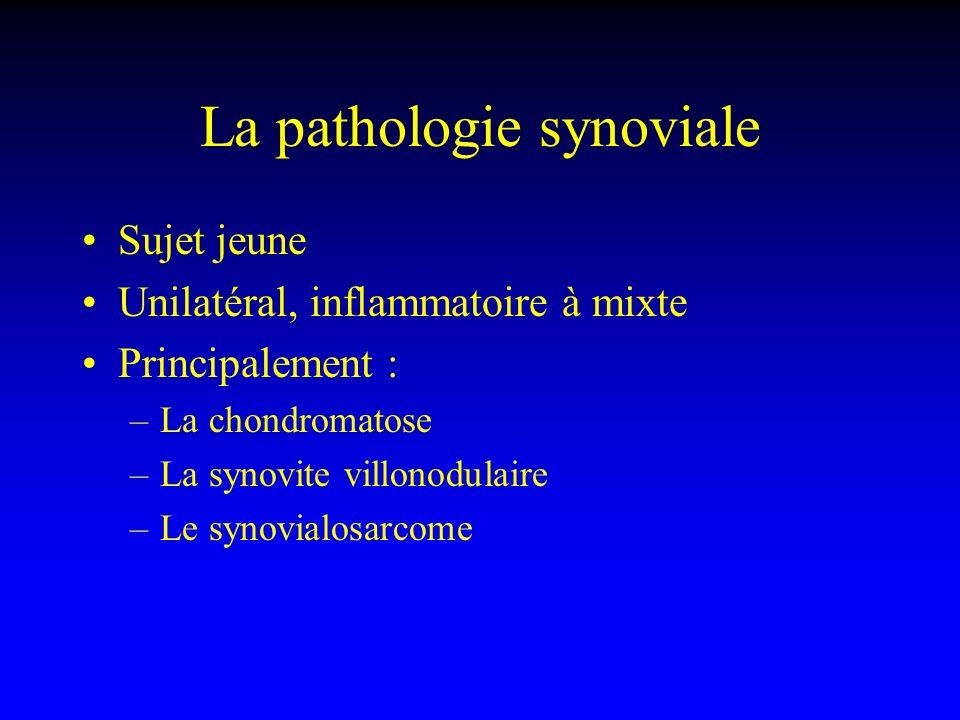 La pathologie synoviale