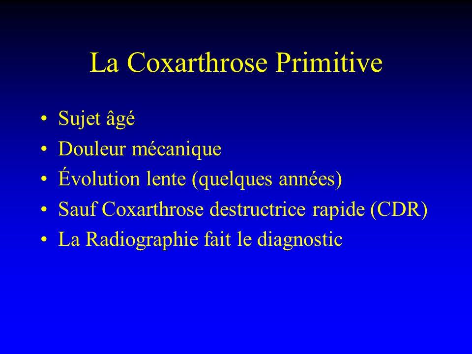 La Coxarthrose Primitive