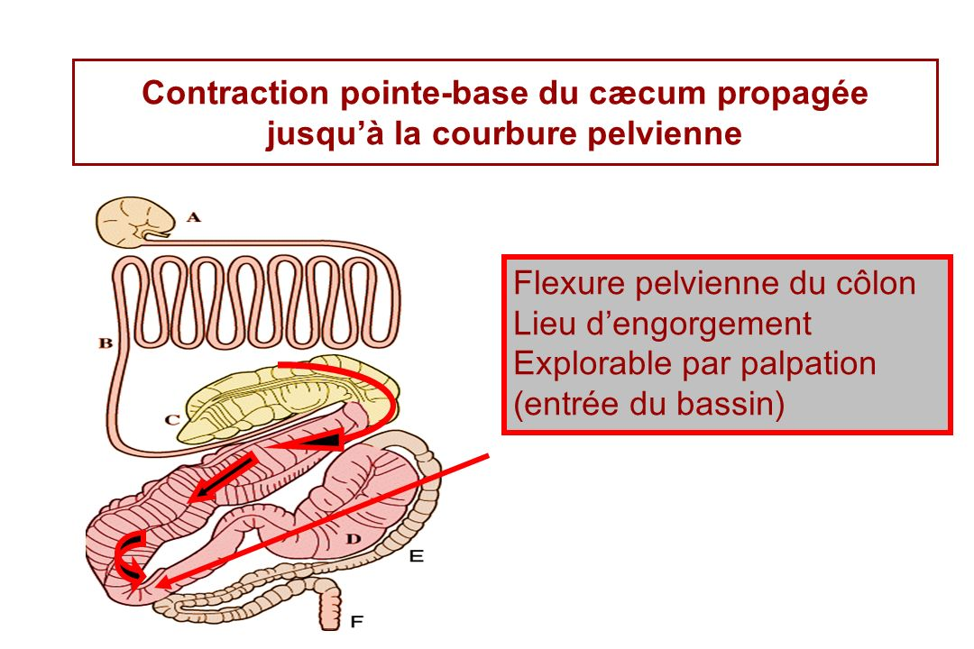 Contraction pointe-base du cæcum propagée jusqu'à la courbure pelvienne