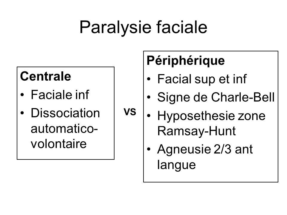 Paralysie faciale Périphérique Facial sup et inf Centrale