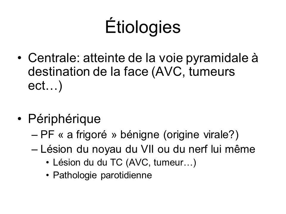 Étiologies Centrale: atteinte de la voie pyramidale à destination de la face (AVC, tumeurs ect…) Périphérique.