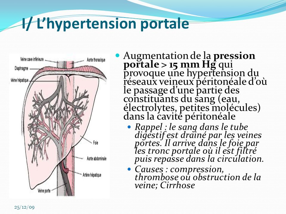 I/ L'hypertension portale