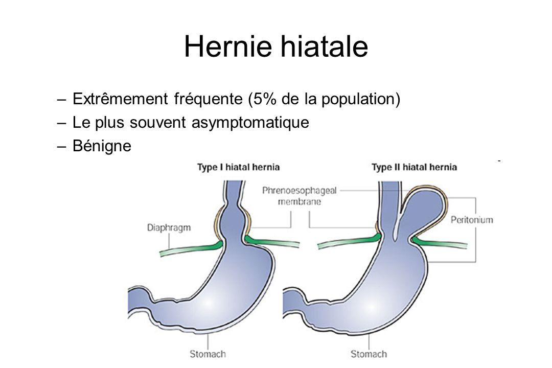 Hernie hiatale Extrêmement fréquente (5% de la population)