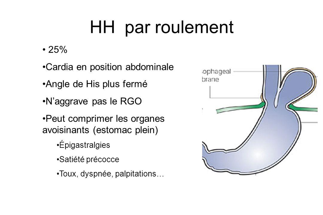 HH par roulement 25% Cardia en position abdominale
