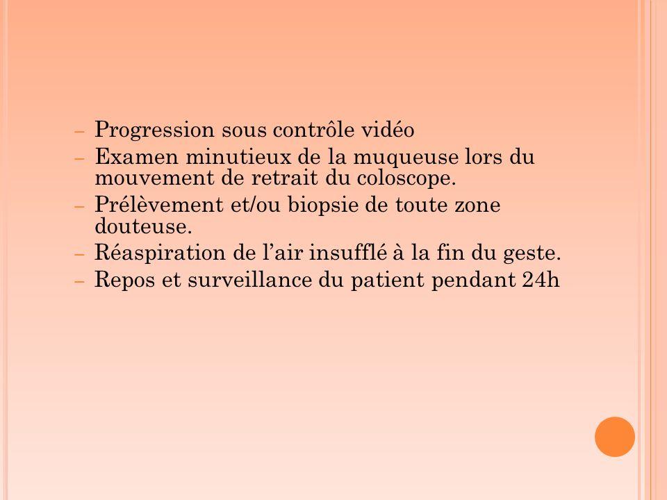 Progression sous contrôle vidéo