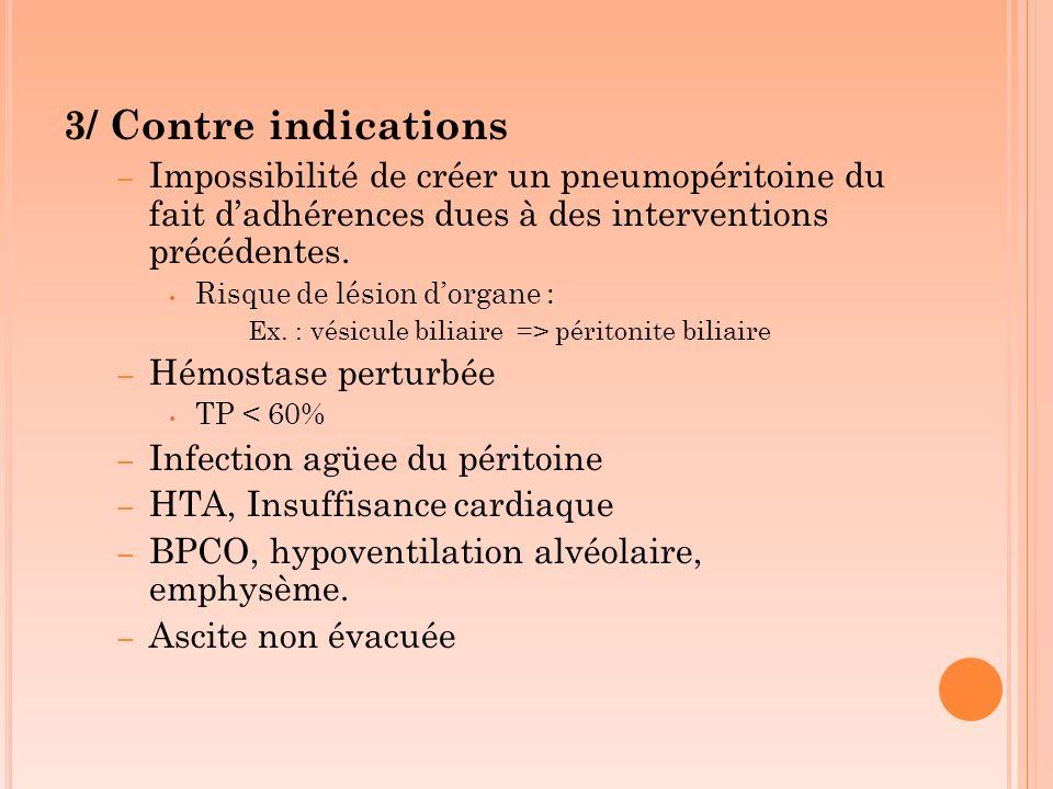 3/ Contre indications Impossibilité de créer un pneumopéritoine du fait d'adhérences dues à des interventions précédentes.
